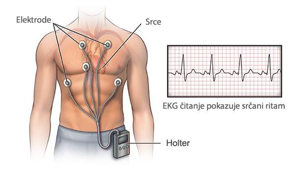 Holter monitor sa očitavanjem EKG-a